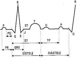 Electrocardiograma.jpg